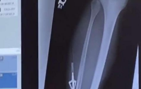 X-RAY VISION. A shot of the X-RAY of junior Colson Schubert's leg shows the arrow near his bone. Schubert injured himself in a hunting accident on Sunday.